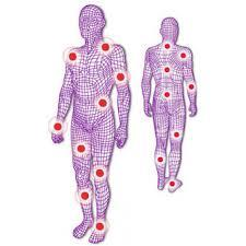 Fisiocrem solugel anti-inflammatory